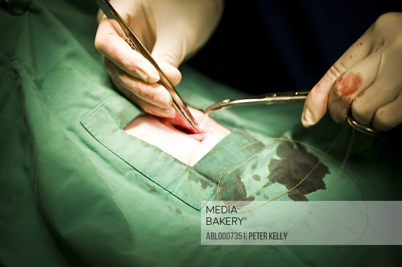 Surgeon Suturing Incision, Close up view