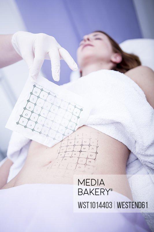 Aesthetic surgery, skin tightening